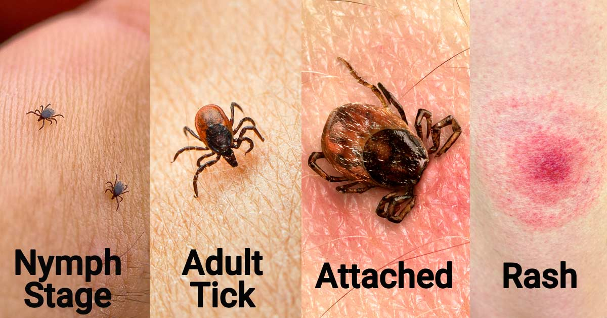 Pictures showing ticks at various stages of growth, a tick embedded in skin, a bulls-eye rash.