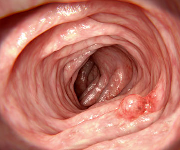 View of colon during colonoscopy with benign adenomatous polyp present.