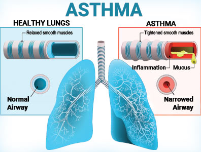 Diagram comparing asthma-affected airways to healthy airways in lungs.