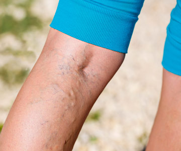 Varicose veins can be treated with a non-invasive procedure in your doctor