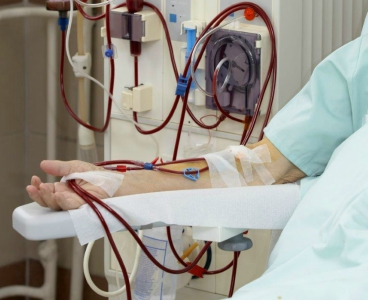 Closeup on dialysis tubing and arm