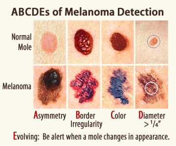 See the ABCDEs of Melanoma: Asymmetry, Border Irregularity, Color, Diameter, Evolving. Compare normal moles with melanoma.