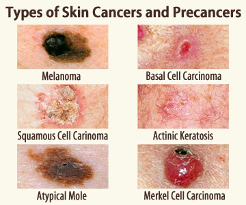See six skin cancers and precancers: melanoma, actinic keratosis, squamous, basal and merkel cell carcinoma, atypical mole.