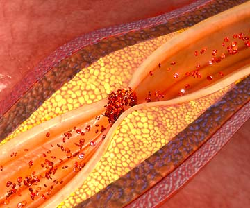 Plaque build-up in arteries limits blood flow.