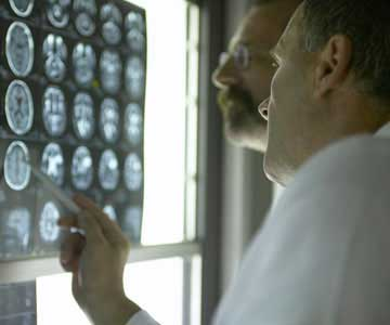 doctors-reviewing-brain-xray-324-CO