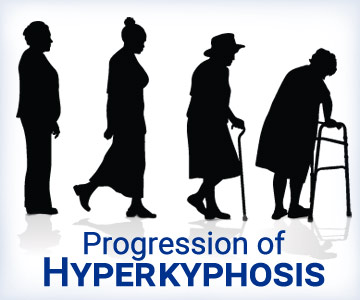 Hyperkyphosis is the forward rounding of the spine caused by osteoporosis, poor posture and spinal malformations.