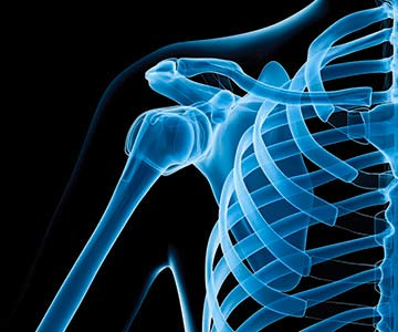 Image of shoulder x-ray.