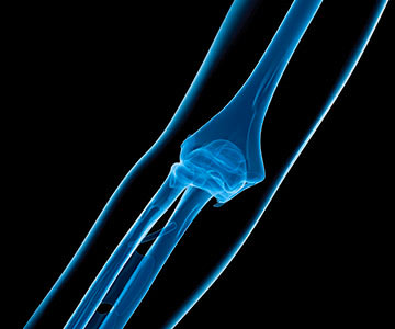 Image of elbow x-ray.
