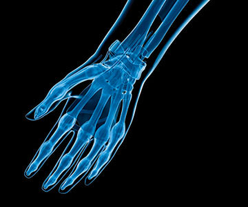 Image of hand x-ray.