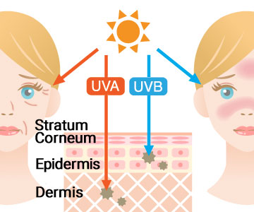 UVA and UVB ultraviolet rays affect skin differently. UVA causes tanning and wrinkling, UVB causes sunburn.