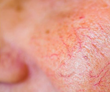 The fine lines of spider veins on a cheek.