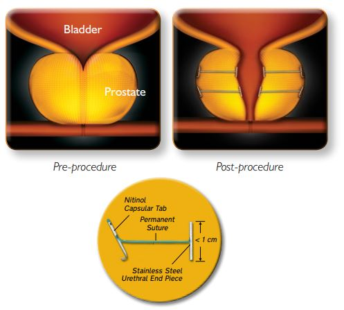 UroLift System Procedure
